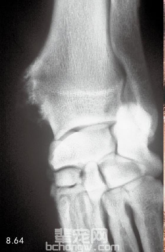 多发性软骨外生骨疣