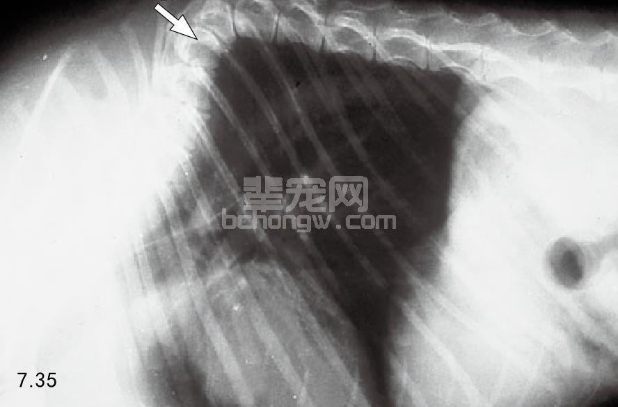 半脊椎畸形