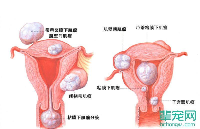 原因 膜 子宮 内 炎