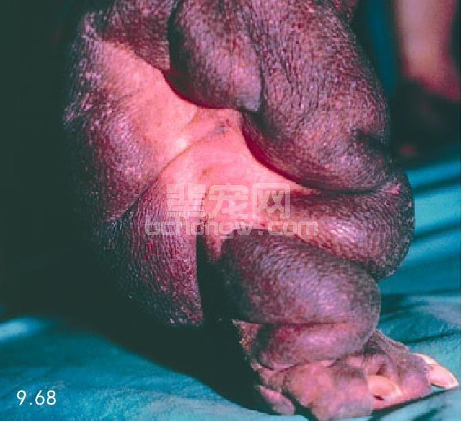 皮肤黏蛋白增多症