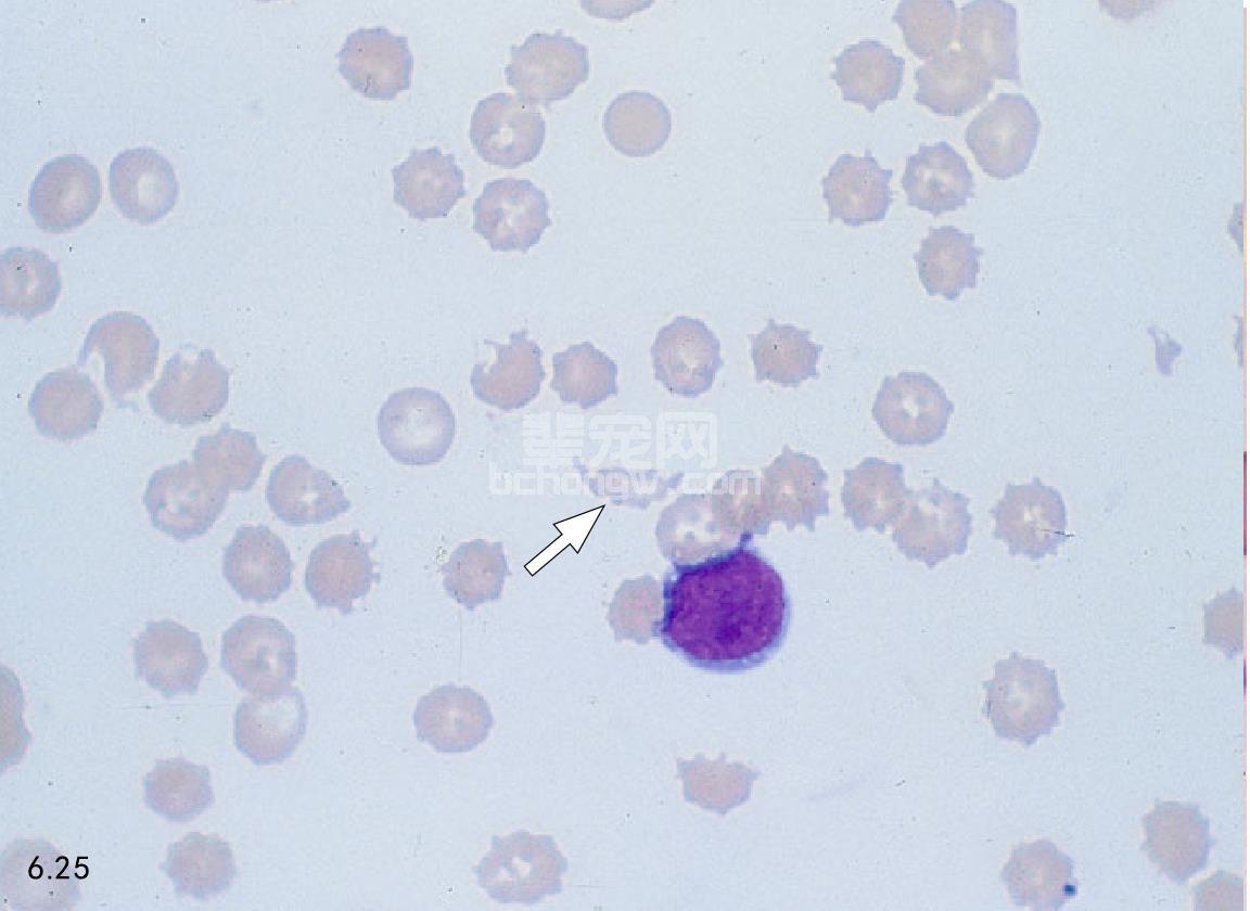 弥漫性血管内凝血(DIC)