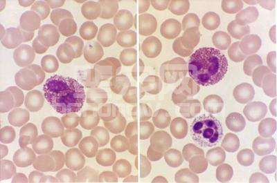 寄生虫性嗜碱性粒细胞增多症
